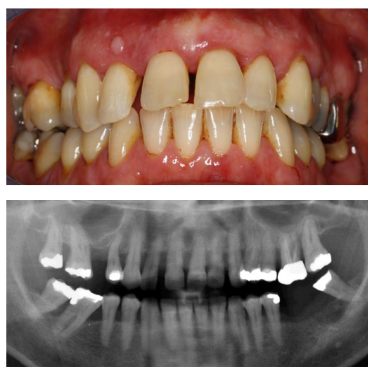 Generalized severe chronic periodontitis