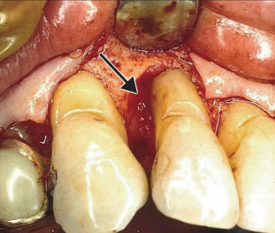 Surgical exposure of bone loss